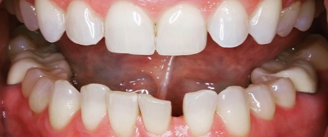 Before Image For Full Mouth Dental Implants at Warwick Dental