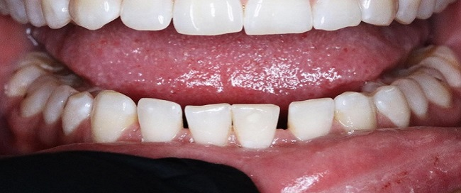Before Image For Full Mouth Dental Implants